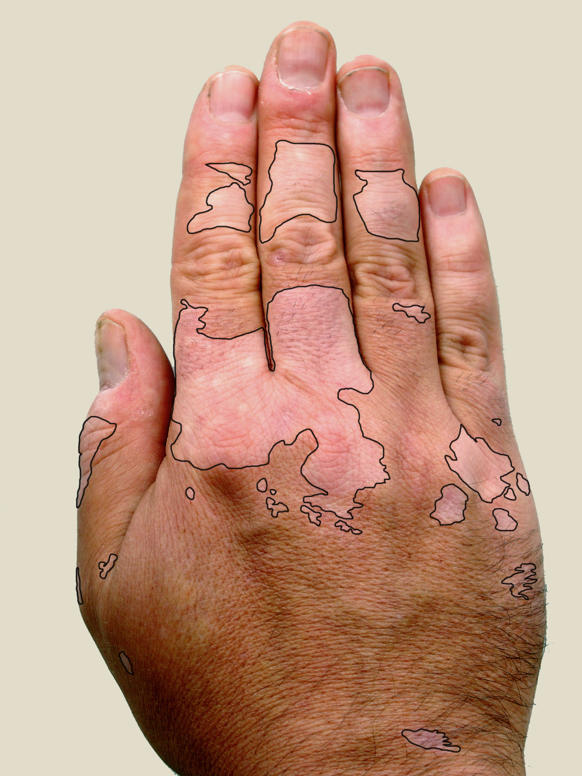 right hand with vitiligo